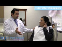 Maria's Patient Experience – Rhinoplasty 1 Day Follow Up Consultation