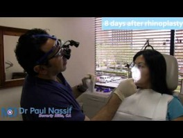 Maria's Patient Experience – Rhinoplasty 8 Days Post-op Follow Up Consultation
