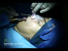 Dr. Nassif's Closed Rhinoplasty How To – Closing Incision
