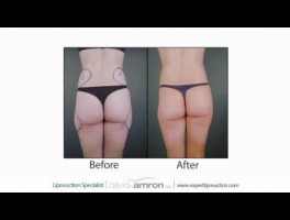 Dr.David Amron Discusses Mini-Liposuction for the Fit Patient