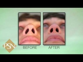 Plastic Surgery Beverly Hills | Rhinoplasty and Septoplasty